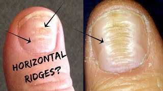 Do You Have These Horizontal Ridges On Your Nails?-Palmistry