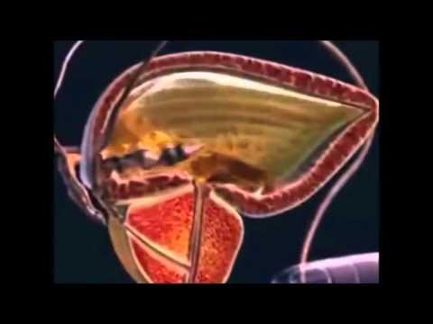 Wie Prostatakrebs bei Männern zu diagnostizieren