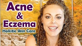 Acne & Eczema Remedies | Healthy Skin Care Tips, DIY Recipes & Natural Skincare Products
