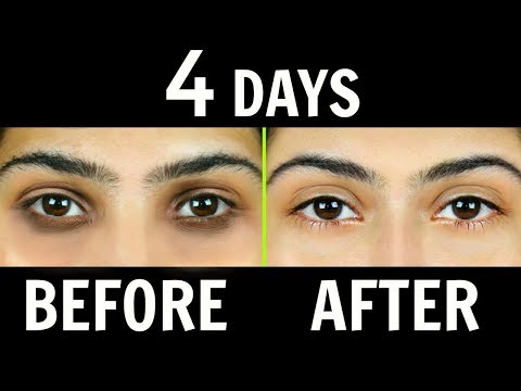 How to Remove Dark Circles Naturally in 4 Days (100% Results)