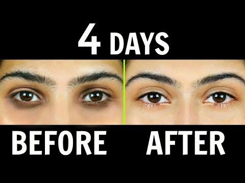 Face mask para sa acne at blemishes mula sa