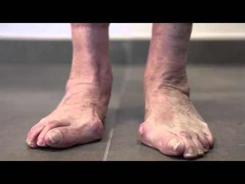 Übung an einer Hernie der Lendenwirbelsäule Behandlungs