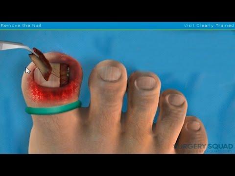 Los síntomas del hongo del pie