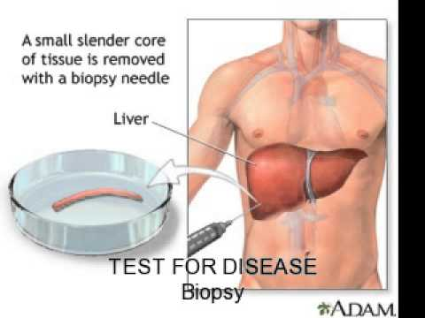 Video Alcoholic Liver Disease