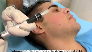 Tratamiento de Cicatrices de Acné Carita Clínica Bonaderma - Clínica Dr. Herrera Saval Bonaderma