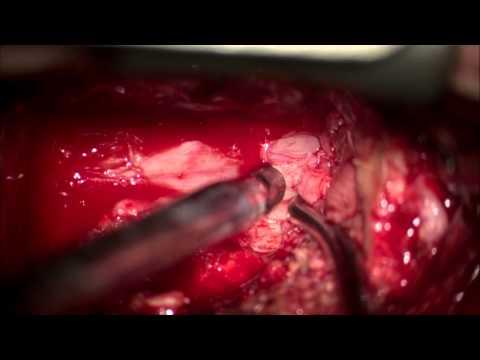 Лечение остеохондроза поясничного отдела 3 стадии