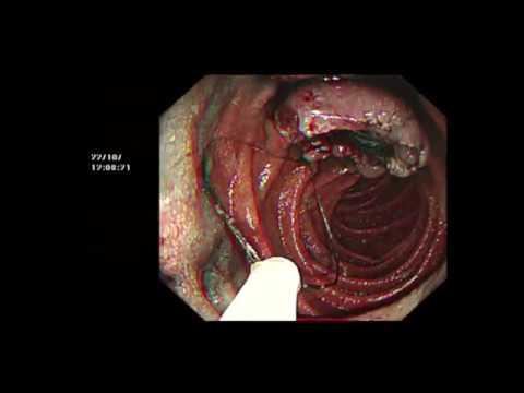 Mit írnak fel a prosztatagyulladás kezelésére