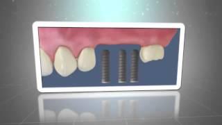 Dentistas en Fuenlabrada Medicalia