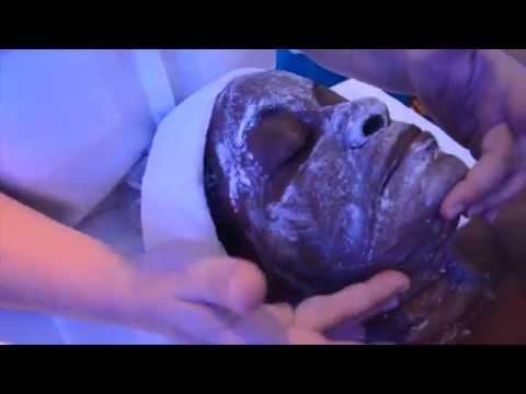 Lutilisation geparinovoj les onguents aux oedèmes sous les yeux