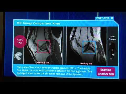 Anquilosis de la articulación de la cadera en la radiografía