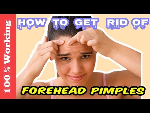 Video How To Get Rid Of Pimples On Forehead Overnight - Fast - Home Remedies - Blackheads - Acne - Remove