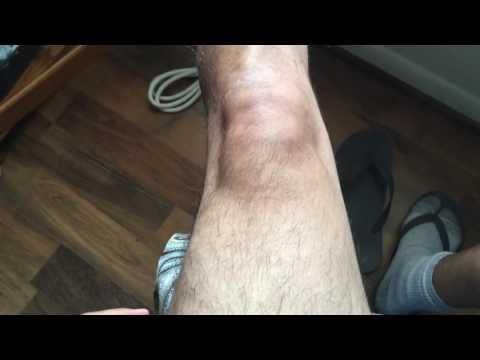 Noche dolor en las articulaciones