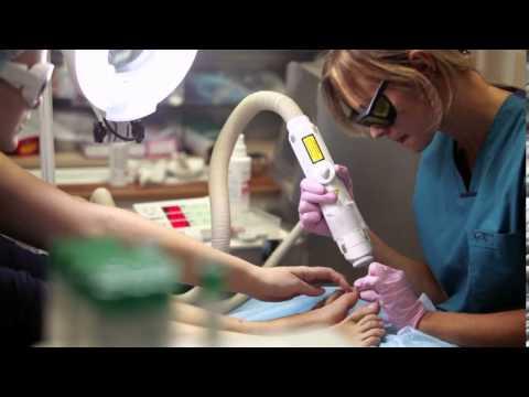 Perossido allatto di trattamento di un fungo di risposte di unghie