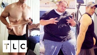 Andrew Has So Much Excess Skin, He Has To Wear A Sports Bra! | My Extreme Excess Skin