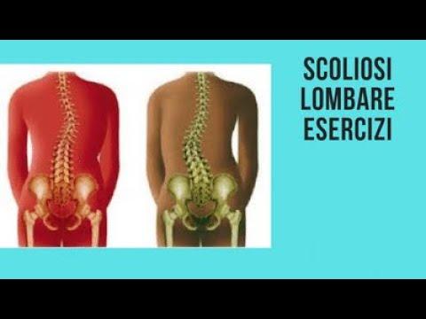 Esercizi per una spina dorsale a ernia e scoliosis