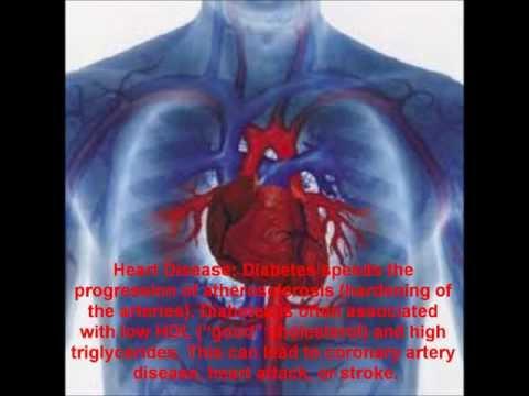 Für Typ-1-Diabetes Care