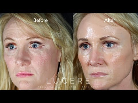 Fresh & Youthful with Full Face Rejuvenation