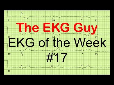 EKG of the Week #17