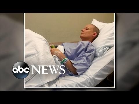 Pamamaga ng mga kamay pagkatapos kanser sa suso surgery