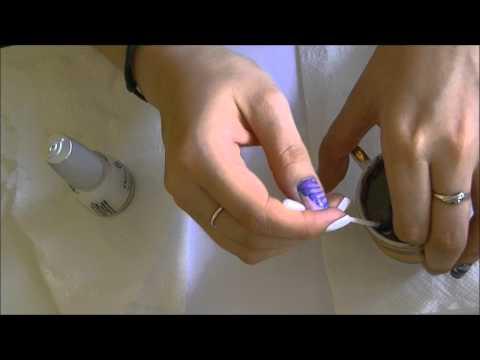 Jak leczyć kość na ludowym kciuka