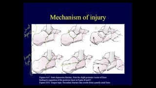 Calcaneal fractures - Anatomy, evaluation, classification (OTA lecture series IV L15a)