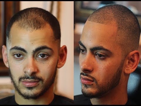 Video How To Fix Receding Hairline Naturally | No Pills, Spray Enhancements or tattoos