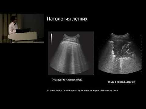 УЗИ при ИВЛ у больных ХОБЛ КУЛАКОВ В. Ф.
