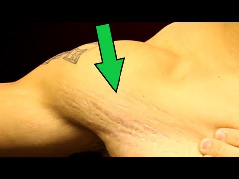 Video Stretch Marks - What Can You Do?