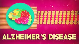 What is Alzheimer's disease? - Ivan Seah Yu Jun