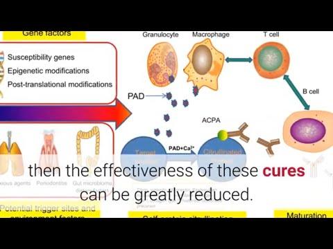 Reactive Arthritis Cure - Important Information About Different Arthritis Cures