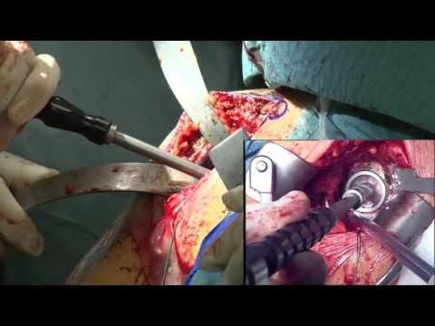 Post-partum mal di schiena e reni