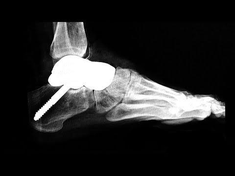 Gambe doloranti dal ginocchio a vita