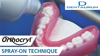 Orthocryl® - fabricating an Occlusal Splint with the spray-on technique (orthodontic appliance)