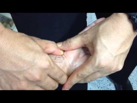 โปโล Varus ความผิดปกติของเท้า