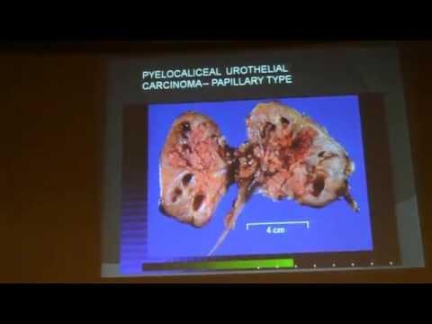 Cancer endometrial papanicolau