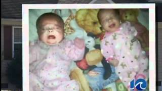 preview picture of video 'Baby died from blunt force trauma'