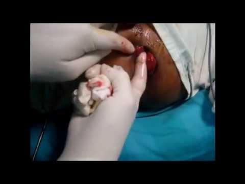 Rastoropcha à la varice variqueuse