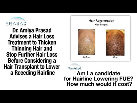 Video Best Solution for a Receding Hairline in Your 20s - Non-Surgical Treatment