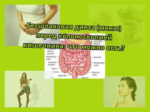 Бесшлаковая диета (меню) перед колоноскопией кишечника: что можно есть?