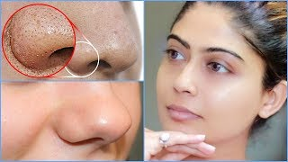 How To do Facial Cleanup At Home | Rinkal Soni