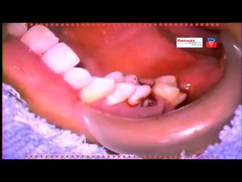 Пересадка зуба. Удаление и имплантация в соседнюю лунку. Removal and implantation into the next hole
