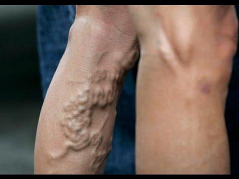 Bokeria di una lezione su chirurgia caldamente vascolare