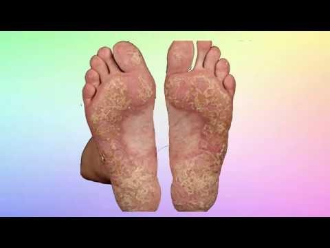 La lotion au psoriasis de la partie hispide de la tête les rappels