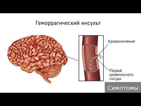 Геморрагический инсульт. Как лечить геморрагический инсульт.