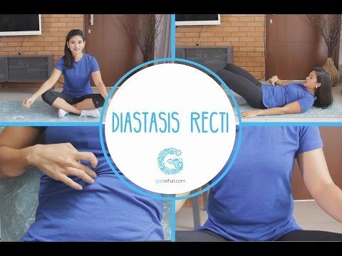 Diastasis cara menghapus perut