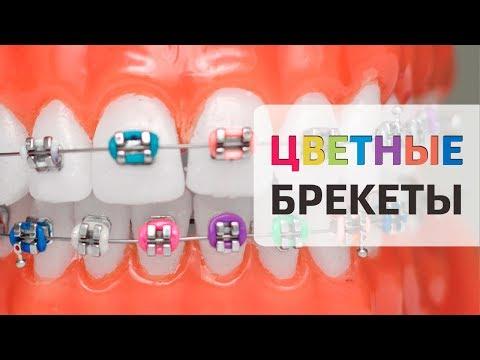 Красивое исправление прикуса - цветные брекеты для детей и пластины на зубы | Доктор Д |Дентал ТВ 6+
