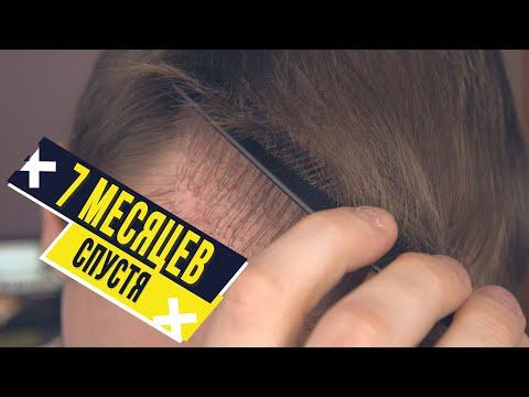 Пересадка волос. 7 месяцев  после пересадки