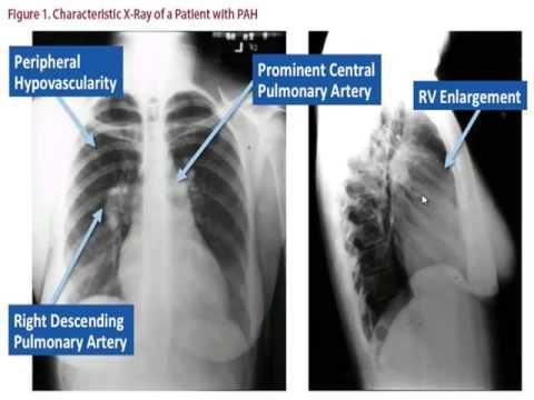 Asthma und Bluthochdruck
