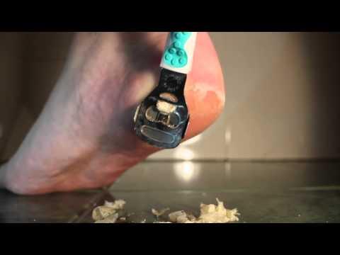 Welche Salben bei der Schuppenflechte der Nägel helfen