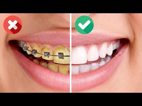 25 BRILLIANT HACKS TO GET HOLLYWOOD SMILE